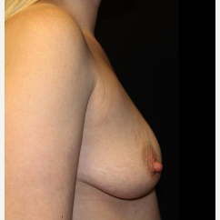 25-34 year old woman treated with Breast Augmentation before 3339127