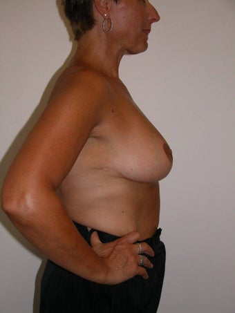 Masto pexy - breast lift 993756