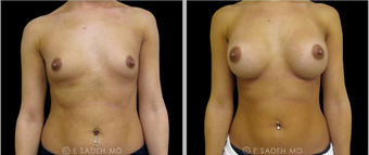 Breast Augmentation  before 691594