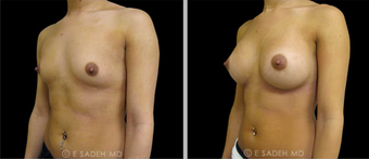 Breast Augmentation  after 691594