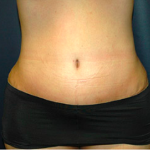 37 year old woman treated with Tummy Tuck after 3578398