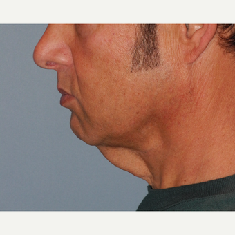 45-54 year old man treated with Neck Lift before 3703193