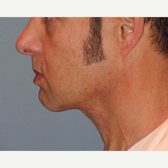 45-54 year old man treated with Neck Lift after 3703193