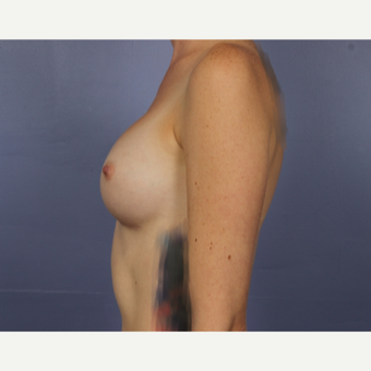 Breast Augmentation after 3663799