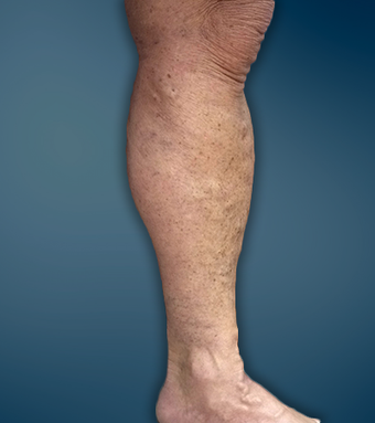 Extensive varicose veins treated with EVLT and micro-phlebectomy