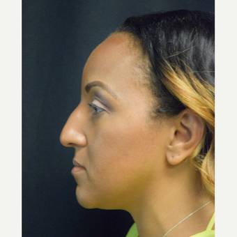 35-44 year old woman treated with Rhinoplasty before 3493360
