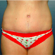 59 year old woman treated with Tummy Tuck after 3578509