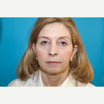 35-44 year old woman treated with Mini Face Lift before 3797179