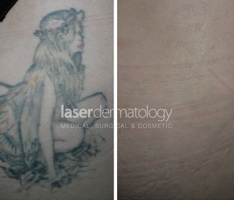 Laster tattoo removal before 1332883