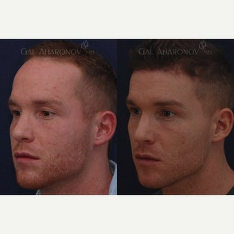 Forehead Reduction Surgery or Hairline Lowering Surgery done with one stage WITHOUT a tissue expande