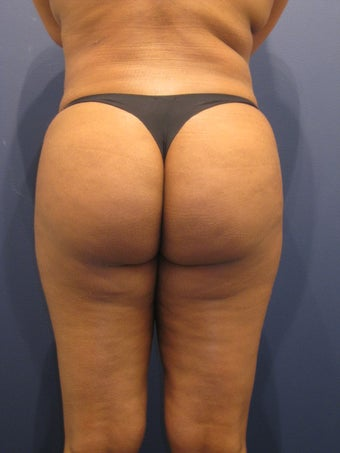 Young woman interested in liposuction and improved contour of her buttocks after 1192337