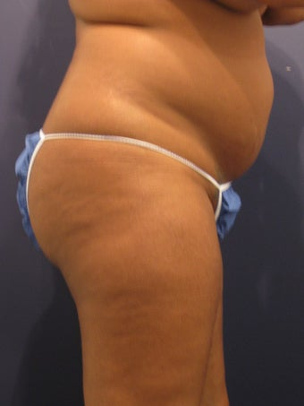 Young woman interested in liposuction and improved contour of her buttocks 1192337