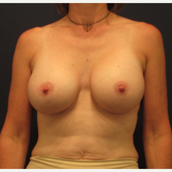 45-54 year old woman treated with Breast Augmentation after 3345168