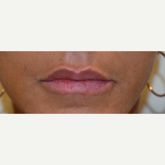 45-54 year old woman treated with Juvederm after 3747602