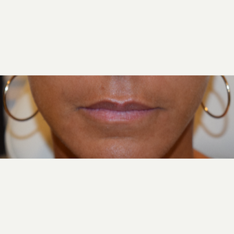 45-54 year old woman treated with Juvederm before 3747602