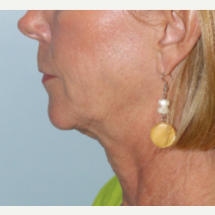 55-64 year old woman treated with Facelift before 3570841