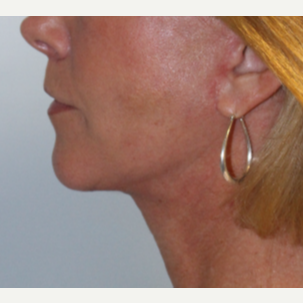 55-64 year old woman treated with Facelift after 3570841