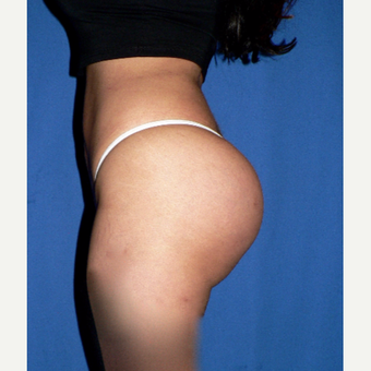 25-34 year old woman treated with Butt Implants after 3002387