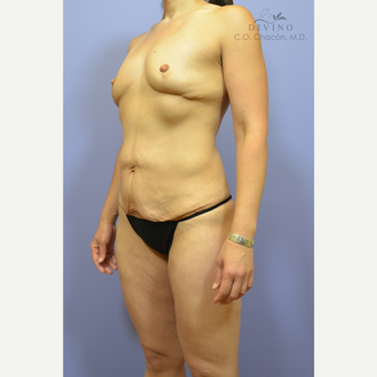35-44 year old woman treated with Mommy Makeover before 3421595