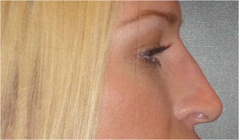Non Surgical Nose Job after 683488