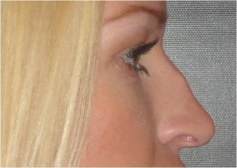 Non Surgical Nose Job before 683488