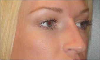 Non Surgical Nose Job 683488