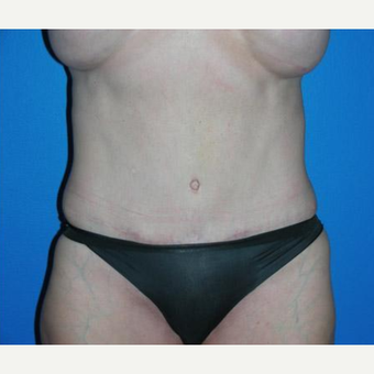 Tummy Tuck after 3208618