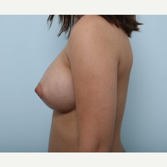 Breast Augmentation after 3425355