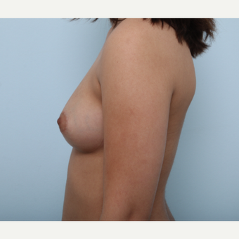Breast Augmentation before 3425355