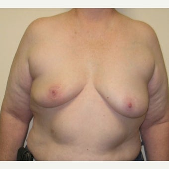55-64 year old woman treated with Breast Reconstruction before 1925124