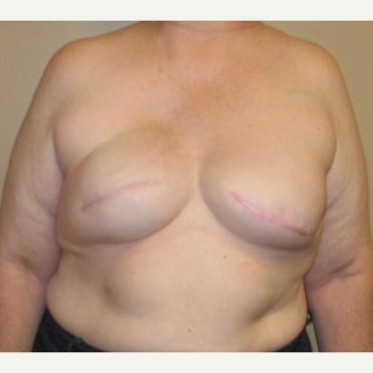 55-64 year old woman treated with Breast Reconstruction after 1925124
