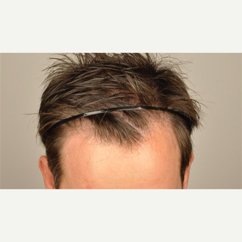 35-44 year old man treated with 2806 Grafts FUE Hair Transplant before 3091515