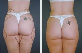 Tumescent Liposuction before 349930