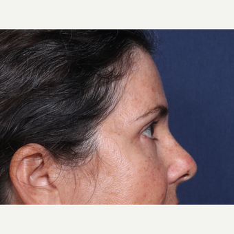 35-44 year old woman treated with Eyelid Surgery (view 2 of 2) after 3180900