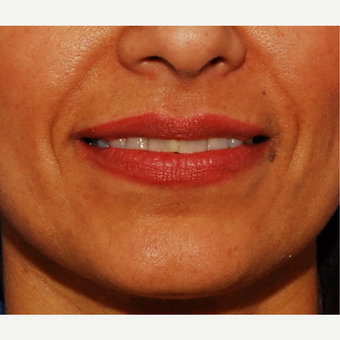 35-44 year old woman treated with Juvederm before 3625169