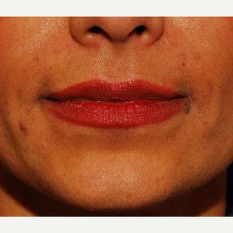 35-44 year old woman treated with Juvederm after 3625169