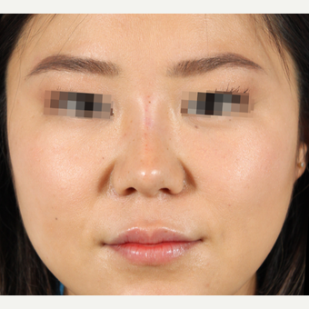 25-34 year old woman treated with Rhinoplasty after 3419583