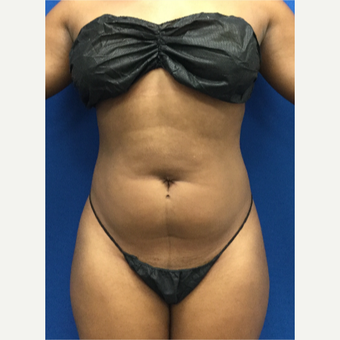 25-34 year old woman treated with Liposuction before 3142164