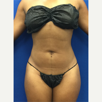 25-34 year old woman treated with Liposuction after 3142164
