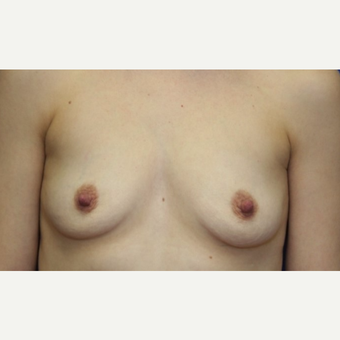 37 year old woman with a Breast Augmentation before 3071631