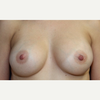 37 year old woman with a Breast Augmentation after 3071631
