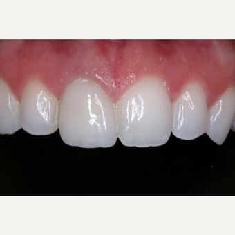 25-34 year old woman treated with Dental Crown after 3629668