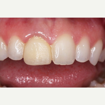 25-34 year old woman treated with Dental Crown before 3629668