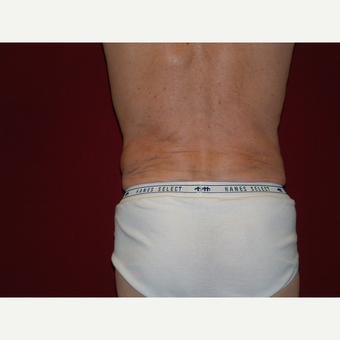 35-44 year old man treated with Liposuction after 3454828