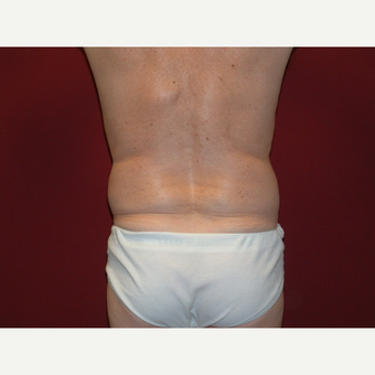 35-44 year old man treated with Liposuction before 3454828