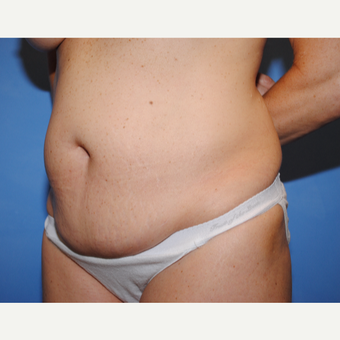 25-34 year old woman treated with Tummy Tuck before 3763316