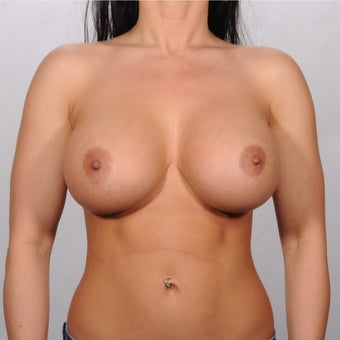 25-30 year old woman treated with Breast Augmentation after 1819239