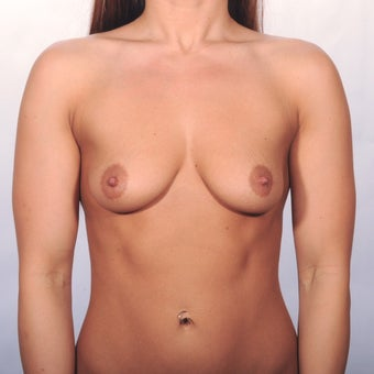 25-30 year old woman treated with Breast Augmentation before 1819239