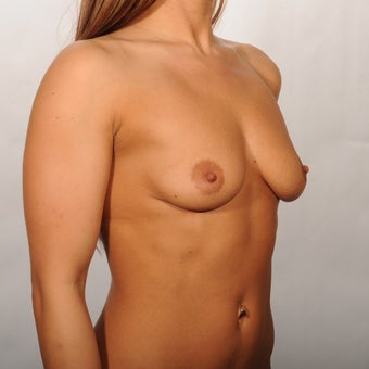 25-30 year old woman treated with Breast Augmentation 1819239
