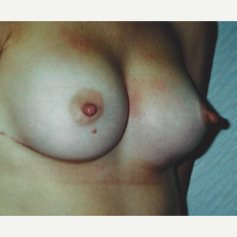 Breast Augmentation after 3629223